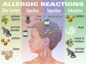 Holistic Treatment for Allergies