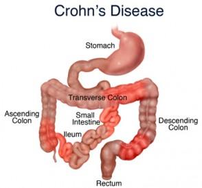 Treating Crohn's Disease With Chinese Herbs & holistic