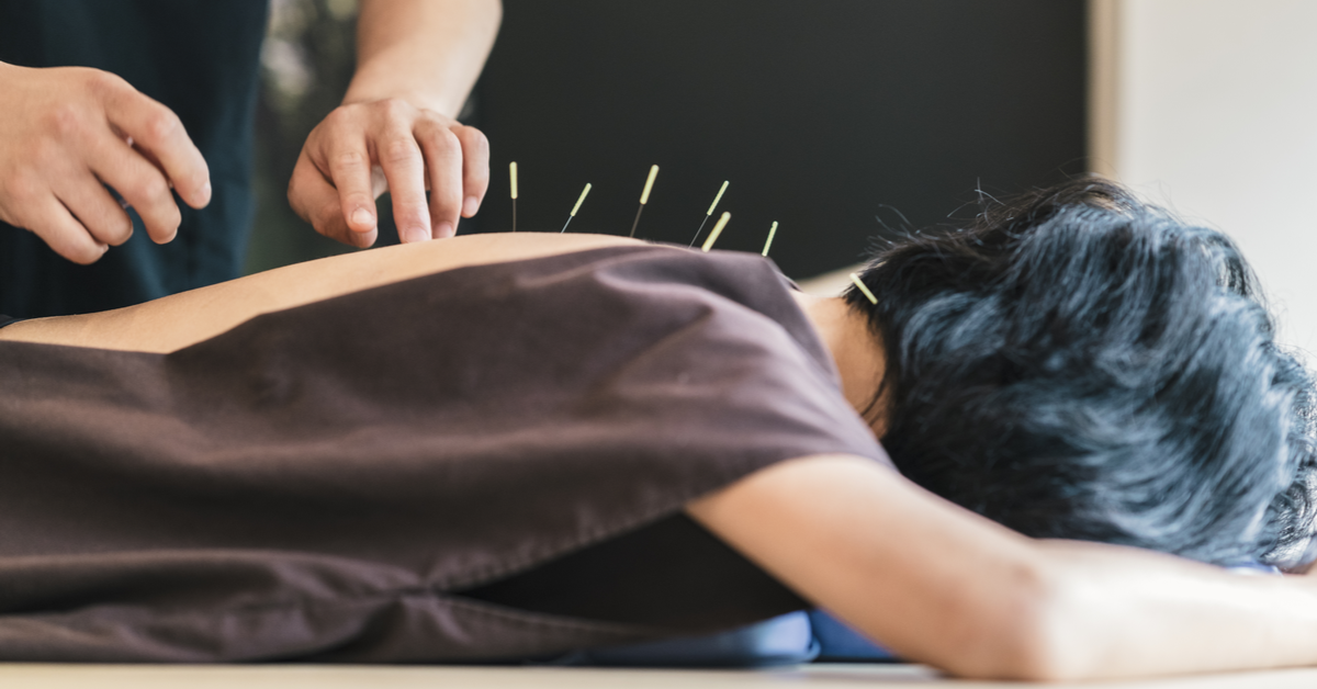 Treat Chronic Paid With Acupuncture